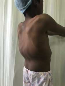 Clinical picture of a patient with Kyphosis spine deformity.
